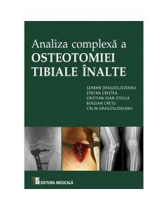 Analiza complexa a Osteotomiei Tibiale Inalte - Serban Dragosloveanu